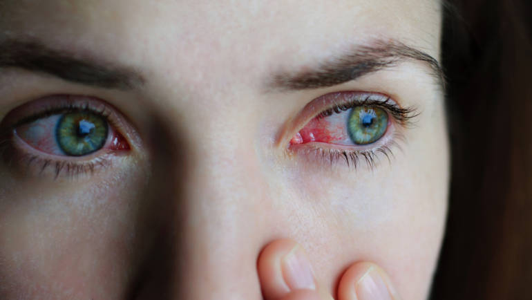 Dry Eyes, Red Eyes & Allergies